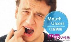 口腔溃疡怎么办 口腔溃疡的治疗方法