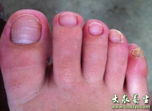 灰指甲的偏方