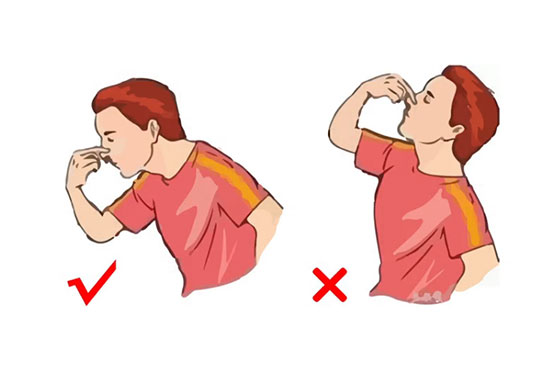 流鼻血的正确处理方法