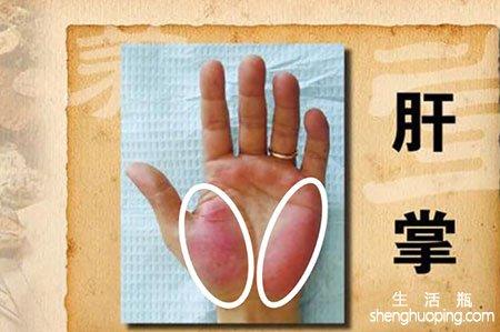 肝癌早期症状--脚掌