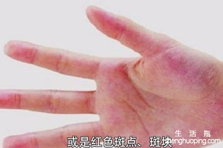 肝癌早期症状--红手掌